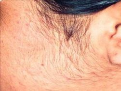 How to remove facial hair naturally