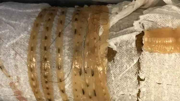 5 foot long tapeworm from stomach after eating sushi